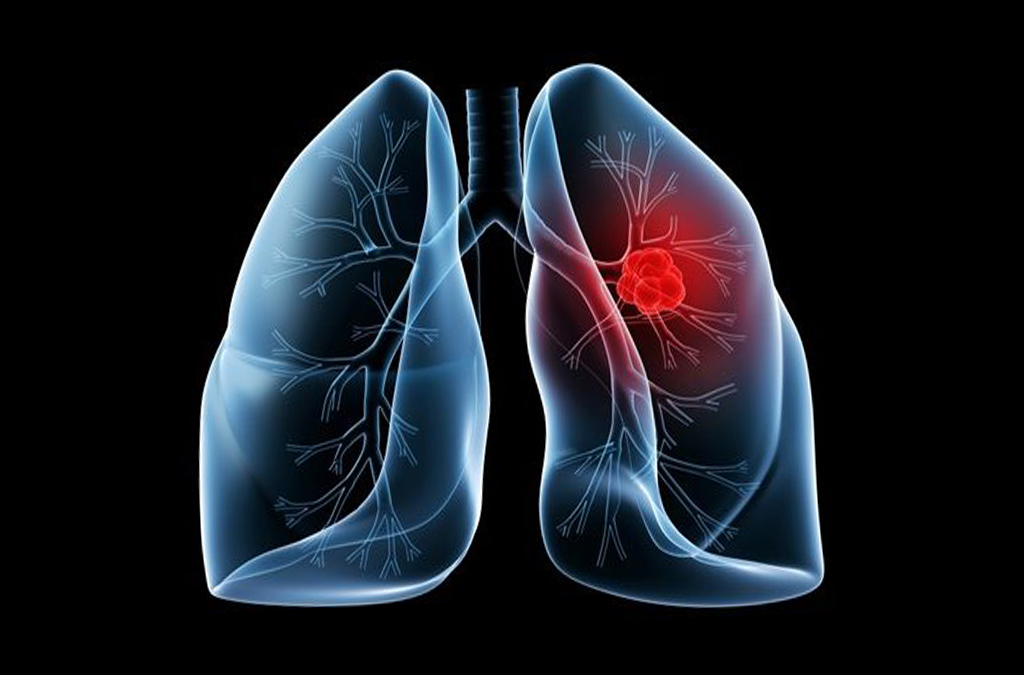 Further positive data for lung cancer screening image